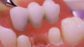 bridge dental treatment