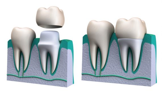 Crown tooth repair