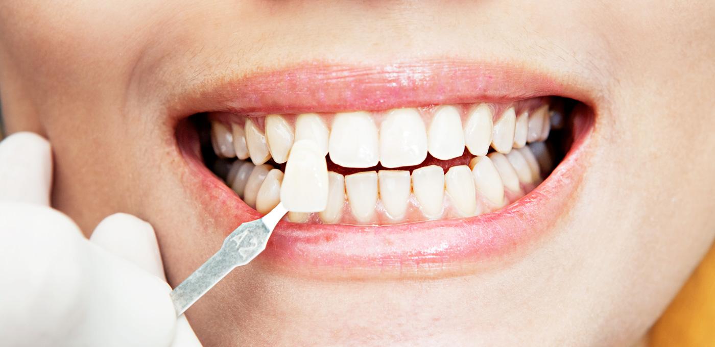 Wollaton Dental Care: wollaton-dental-care-dentist-in-nottingham-veneers