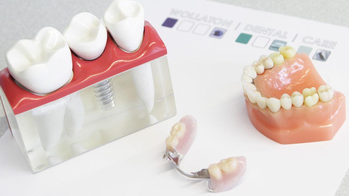 Wollaton Dental Care: Wisdom teeth