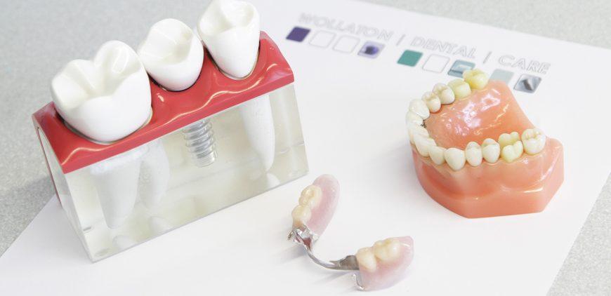 Wollaton Dental Care: Dentures and false teeth