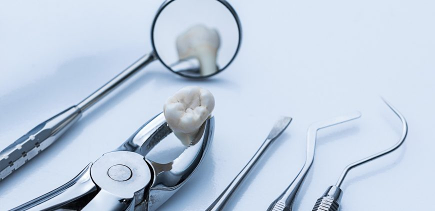 Wollaton Dental Care: Tooth extractions